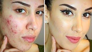 4 Diy Homemade Acne Face Masks How To Get Rid Of Acne Acne Scars