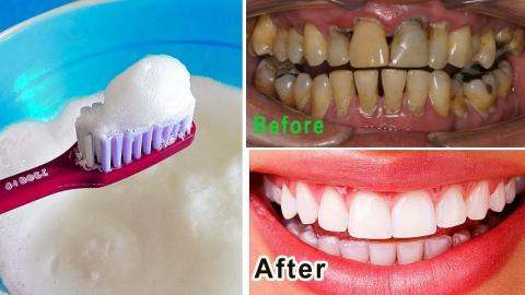 How To Whiten Teeth Naturally In Just 3 Minutes At Your Home