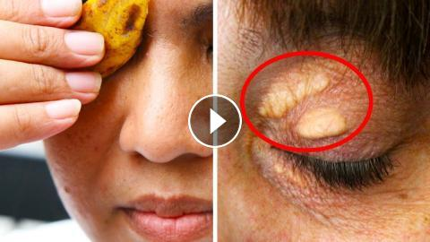 Say Goodbye To Cholesterol Deposits On Your Eyelids And Under Eyes